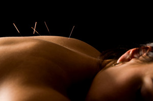 Acupuncture And Back Pain